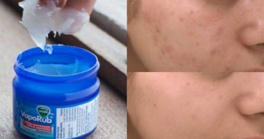 Apply Vicks vaporub on your acne