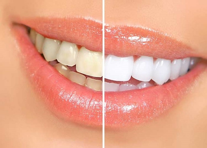 Baking Soda Is  A Good Teeth Whitening Agent