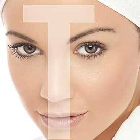 Facial blemishes on your T-Zone