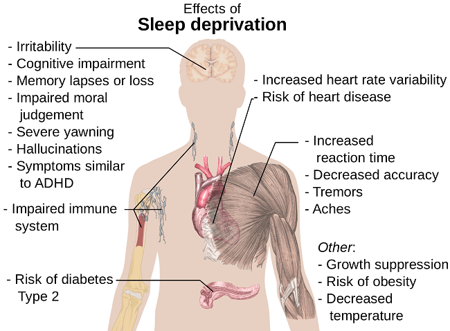 SleepDeprivation