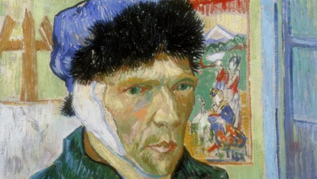 Van Gogh Cut off his ear