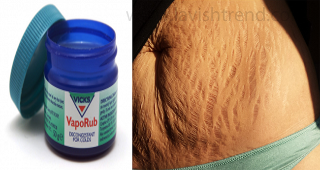 Vicks veporub cure Stretch Marks