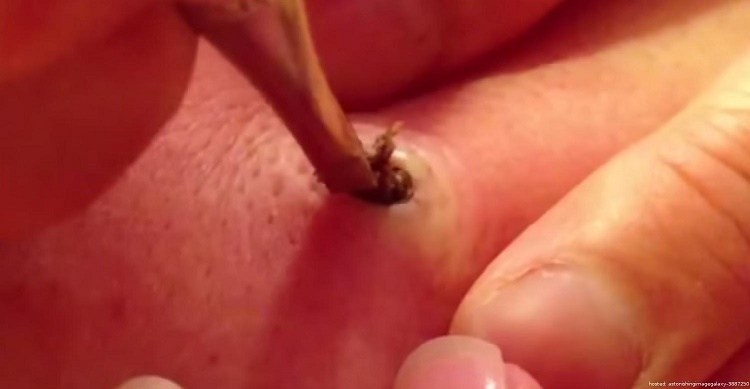 removing an old zit