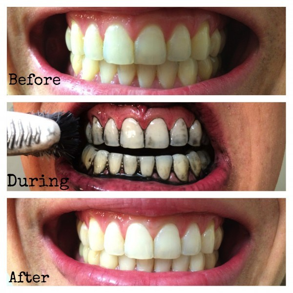 Use Charcoal to whiten teeth