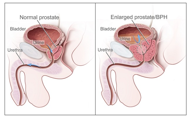 When you experience symptoms of enlarged prostate, see a doctor immediately
