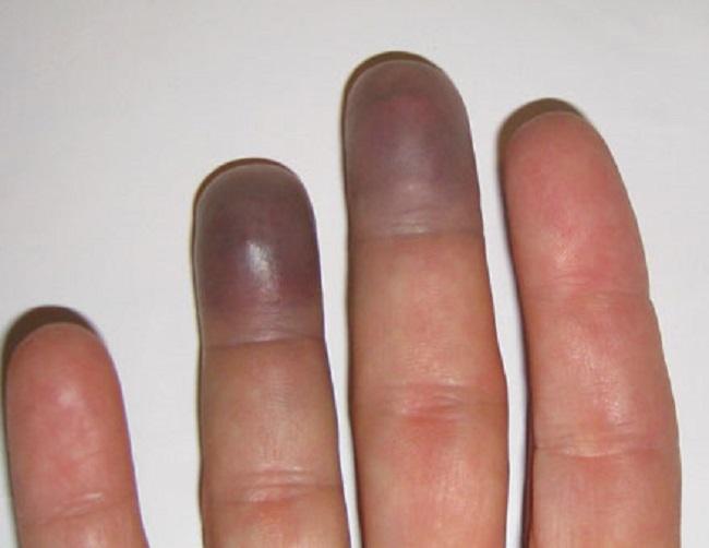 Blue Fingertips