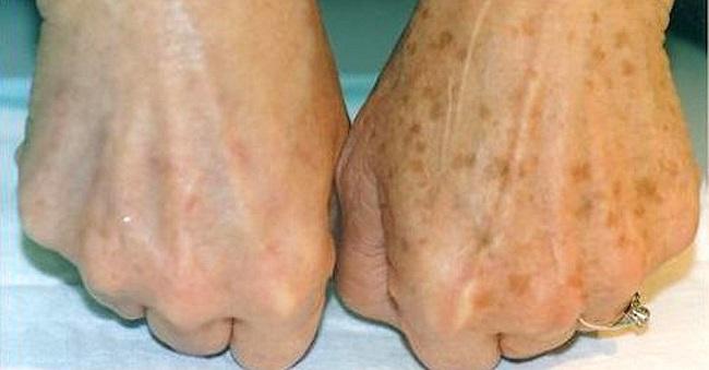 Brown spots on hands