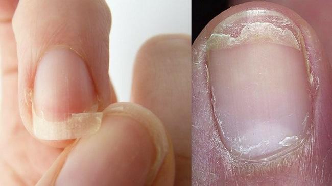 Cracked or weak nails