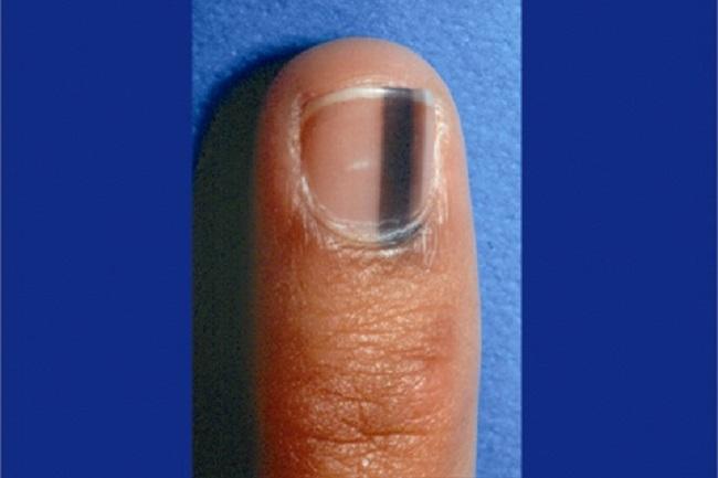 light black line on fingernail - 650×433
