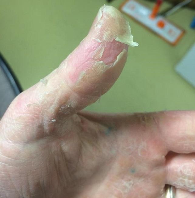 Peeling and Flaky Skin