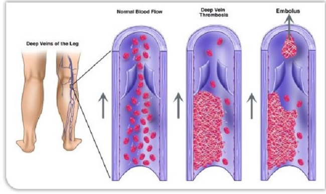 Types of blood clots