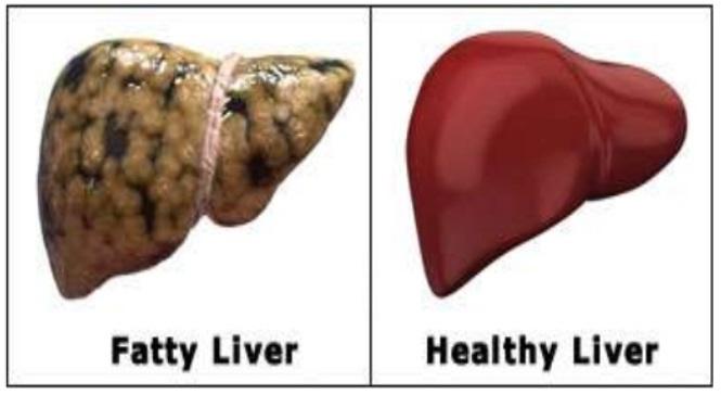 aids treatment liver damage - 665×363