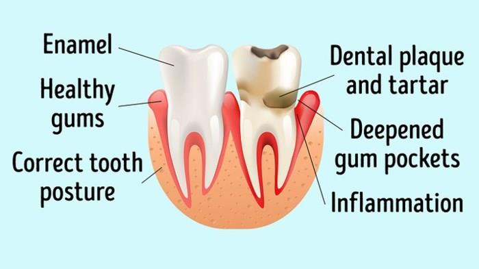 Infectious tooth diseases