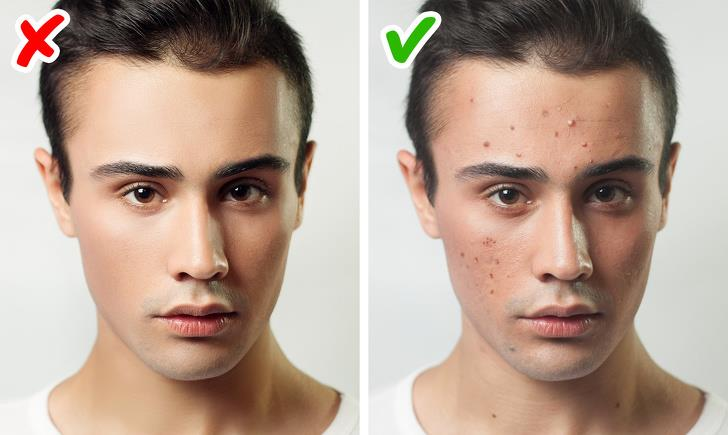 No acne during adolescence