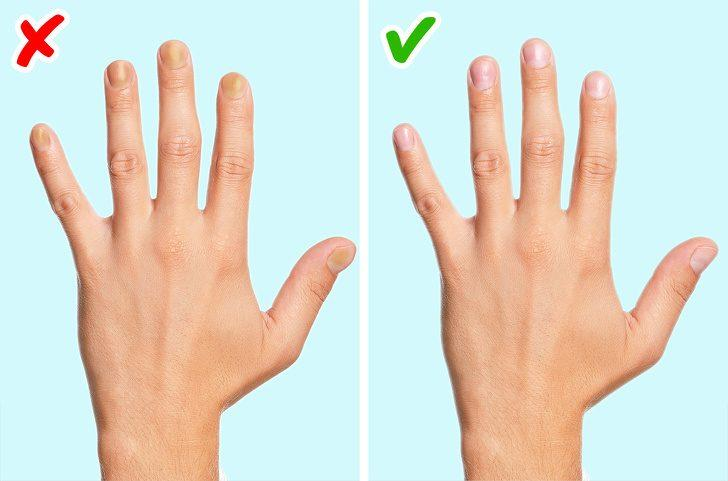 Physical changes in your nails