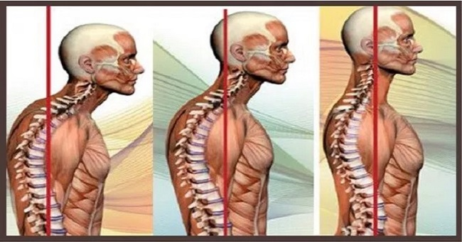 5 Simple Yoga Poses To Improve Posture And Get Relief From Neck And Back Pain