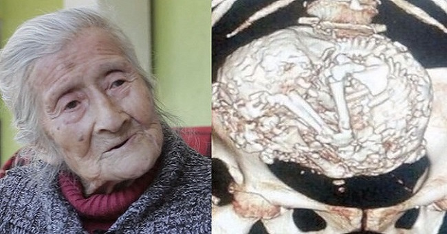 91 Year old woman operated for a tumor reveals a stone fetus which she carried for 61 years