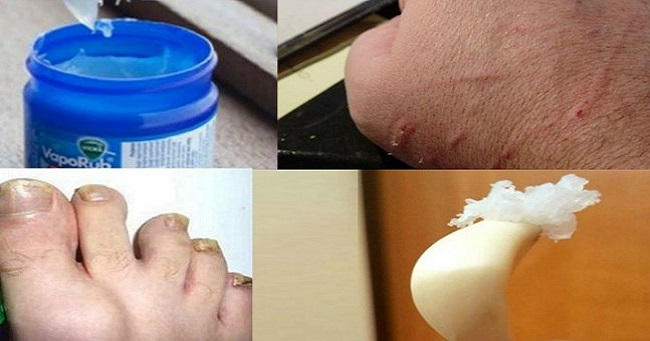 Did you know these 15 amazing uses of Vicks vaporub