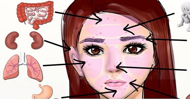 Facial Blemishes Could Indicate Internal Issues. Here's What Your Skin Says About Your Health