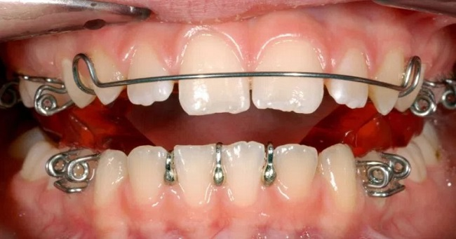 Facts About How Braces Work Revealed
