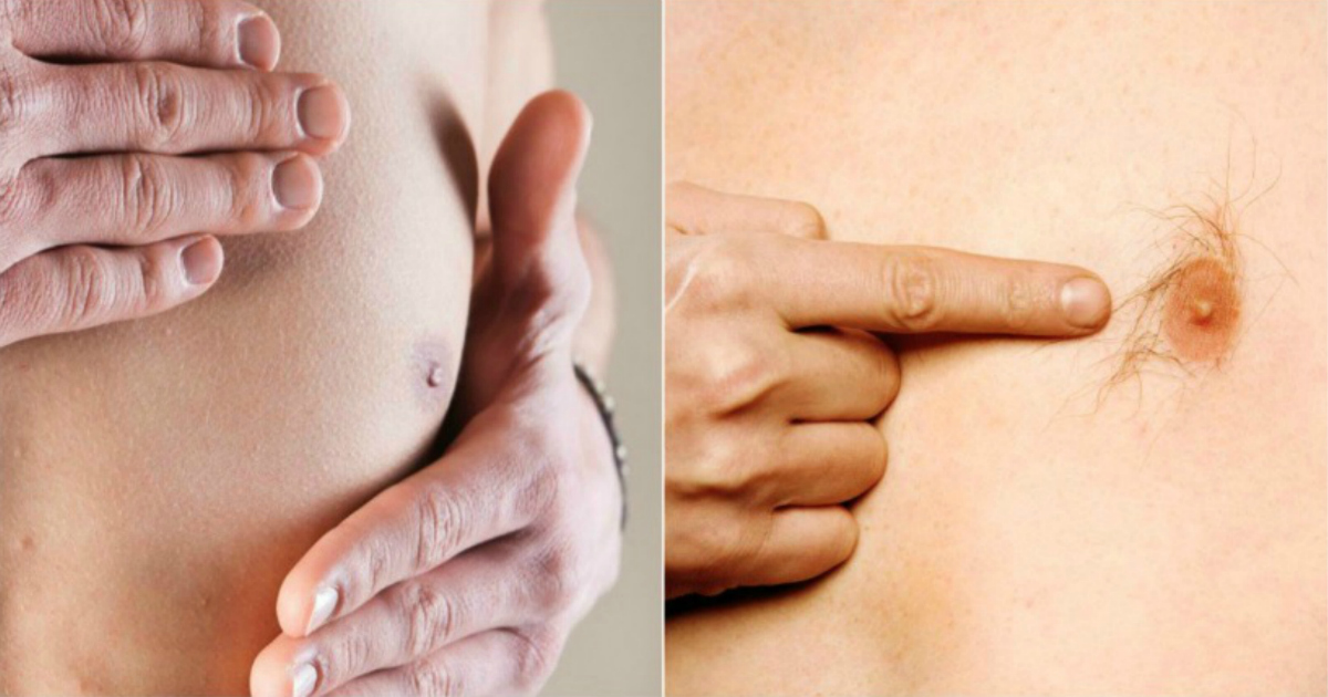 13 Surprising Symptoms Of Male Breast Cancer You Should Never Ignore