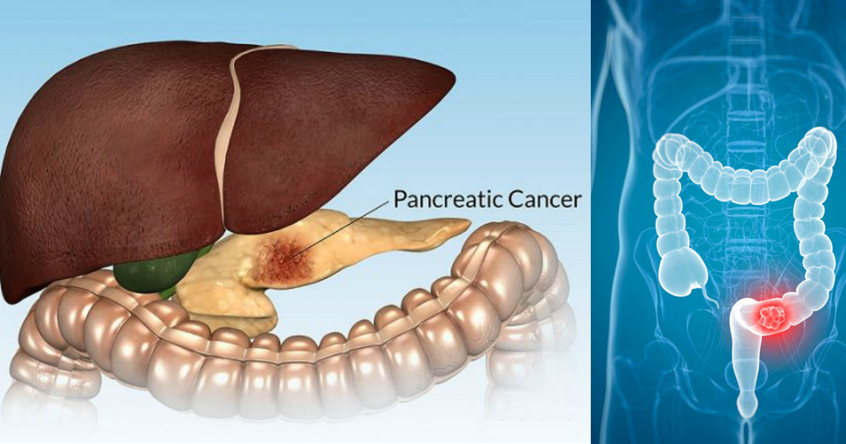 15 Facts And Symptoms Of Pancreatic Cancer You Should Never