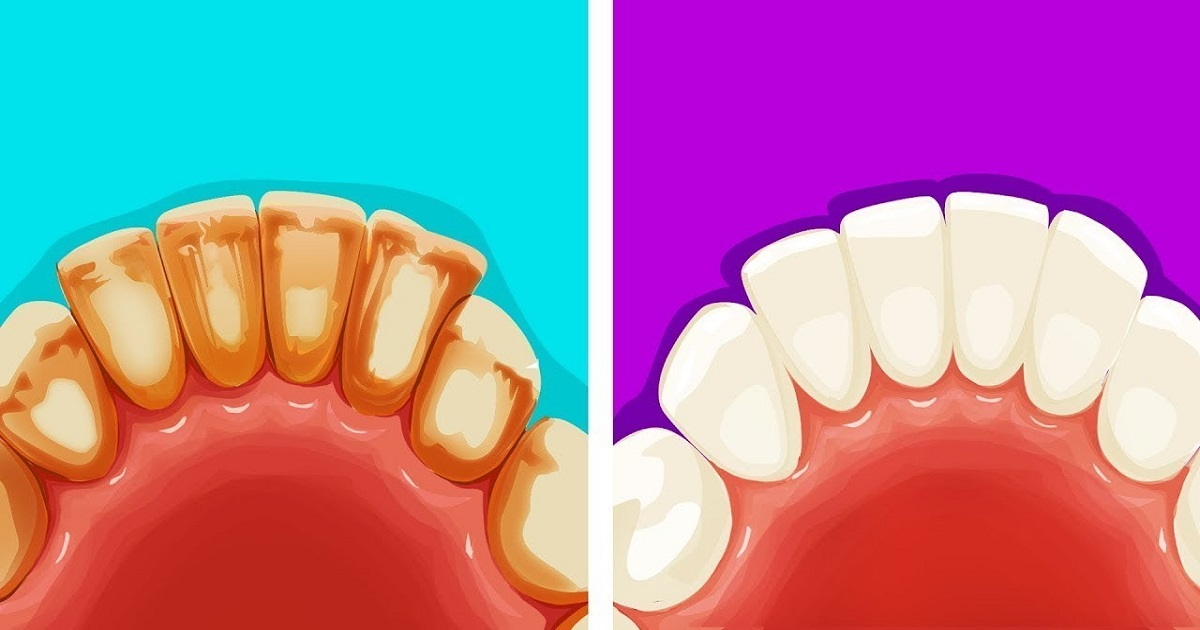 How To Remove Teeth Plaque Naturally At Home