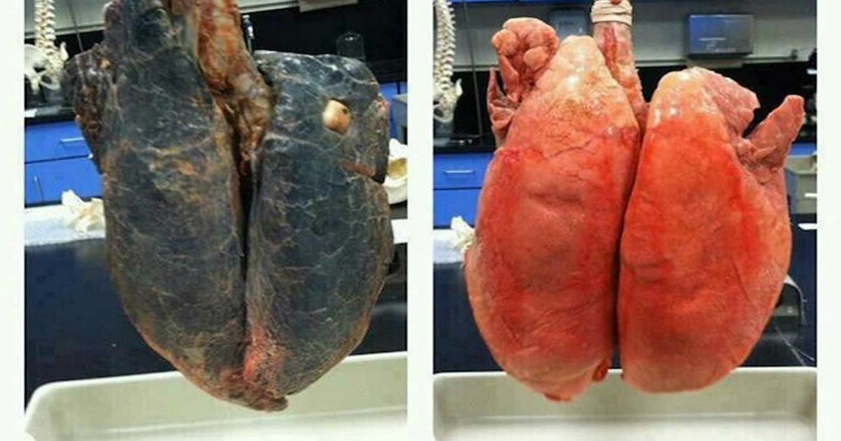 The Difference Between a Healthy and a Cancerous Lung