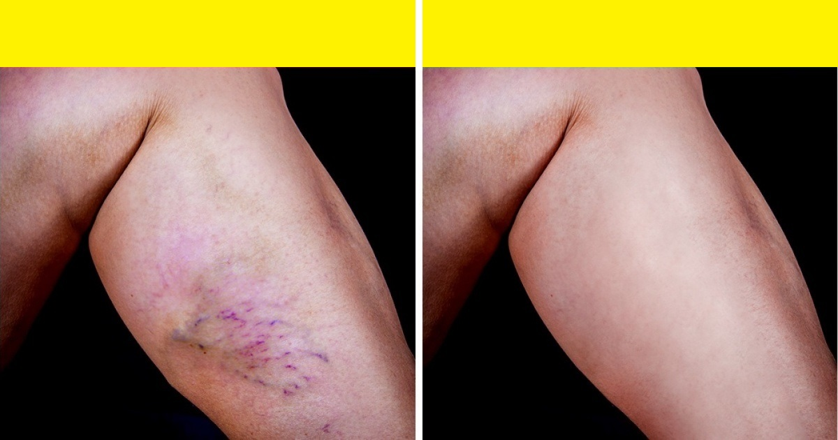 Natural Remedies For Varicose And Spider Veins